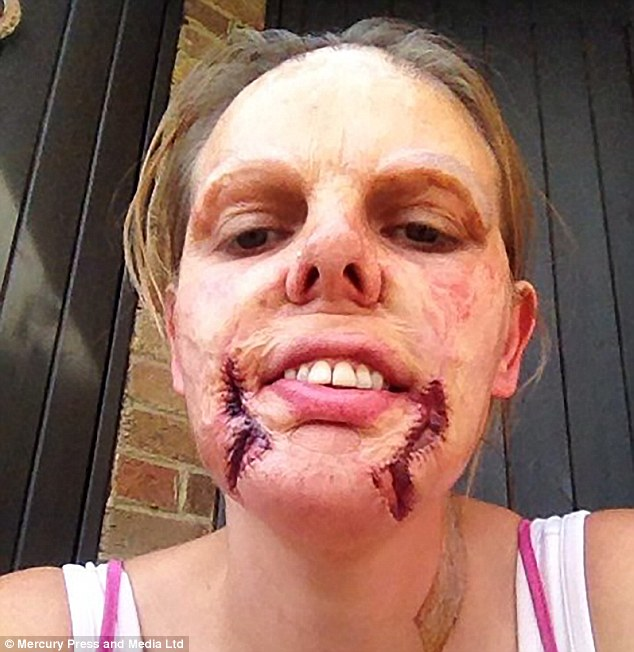 Tammie Stanley suffered third degree burns when she was a baby. In what she thought was her final operation, surgeons performed a skin graft without her consent which left her with 'extreme' scarring, she claims (pictured after the botched operation)