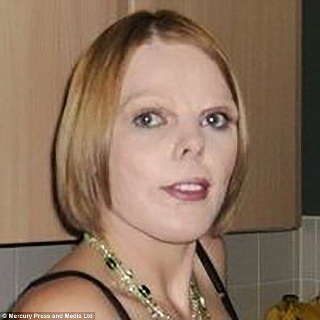She also claims the procedure at the John Radcliffe Hospital, Oxford, has caused her to be housebound (pictured in 2011, before having surgery to tighten skin around her mouth)